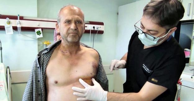 Göğüs kafesi açılmadan 'Koroner Bypass' ameliyatı yapıldı