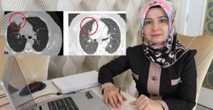 Korona virüs akciğer kanserini taklit etti